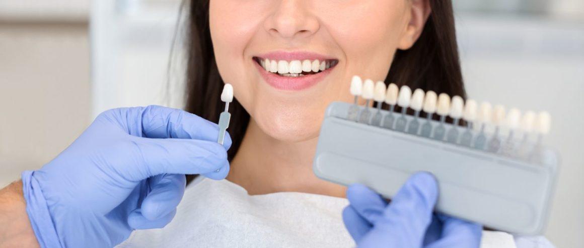 Albire dentară profesională
